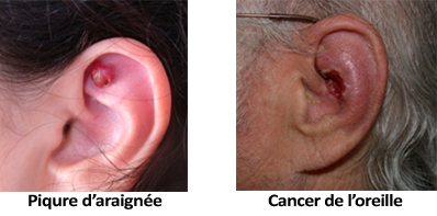 Médecin de gorge nez oreille